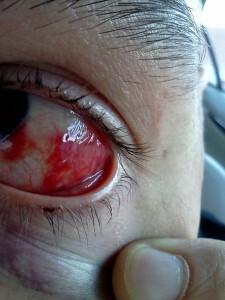 method get s hardy eye poke large
