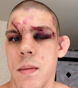 Joe Lauzon Needed 40 Stitches But Is Quot All Good