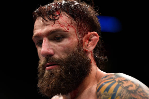 Michael Chiesa Will Fight at UFC 223 Despite Face Laceration