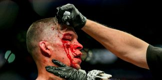 UFC 244 Nathan Diaz Scar Tissue